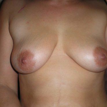 Kleine Titten Nippelbilder